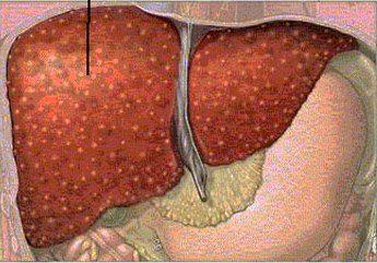 Doença hepática, sintomas e recomendações