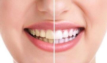 Como clarear os dentes de forma rápida