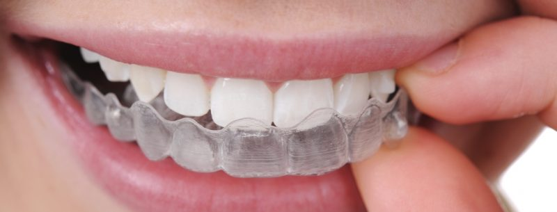 Como alinhar os dentes sem aparelhos