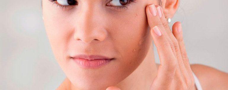 Coisas que seu rosto diz sobre sua saúde