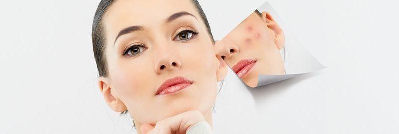 Remédios caseiros para cicatrizes de acne