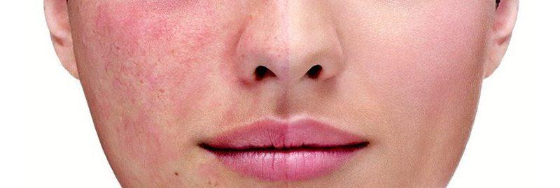 10 melhores remédios caseiros para tratar rosácea