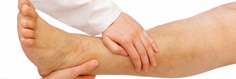 7 sinais de má circulação sanguínea e como tratar o problema