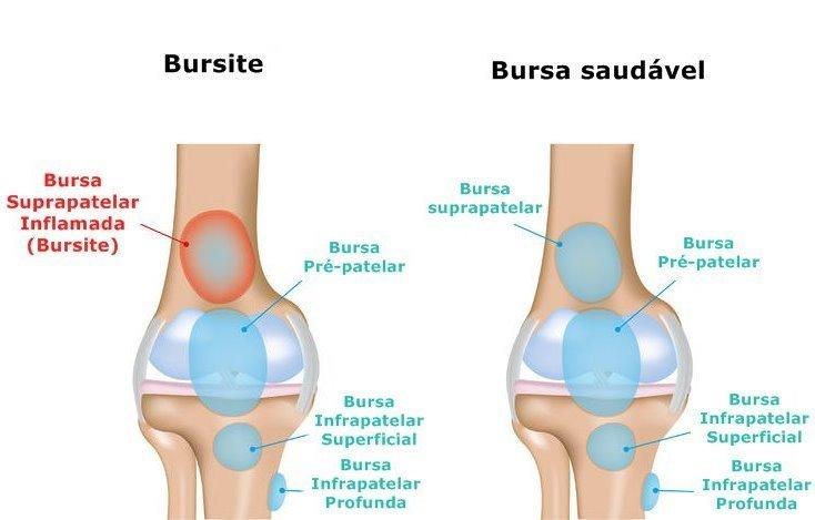 Resultado de imagem para bursite joelho