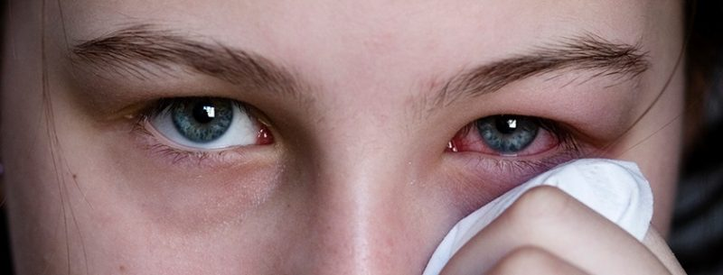 Conjuntivite: o que é, sintomas e tratamentos médicos ou caseiros