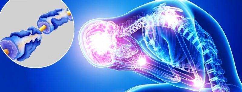 O que é Síndrome de Guillain-Barré, quais seus sintomas e tratamentos