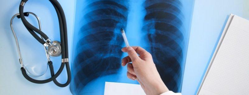 O que é atelectasia pulmonar, quais seus sintomas e tratamento?