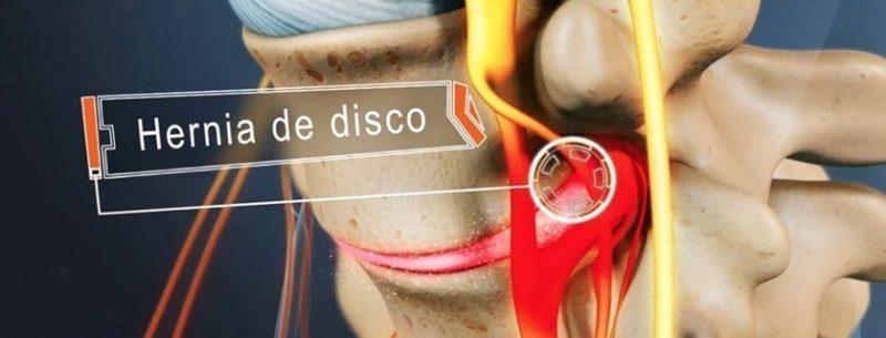 O que é hérnia de disco, quais seus sintomas e tratamentos?